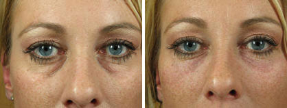 01_non-surgical_eyelift_before-after