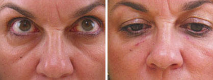 02_non-surgical_eyelift_before-after