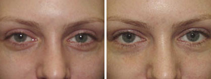 03_non-surgical_eyelift_before-after