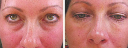 04_non-surgical_eyelift_before-after