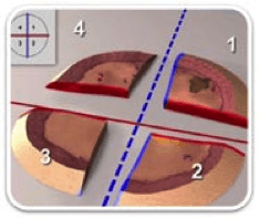 SCC-mohs_micrographic_surgery