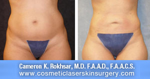 lipo-before-after-1-b