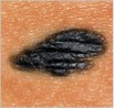 melanoma_asymmetry