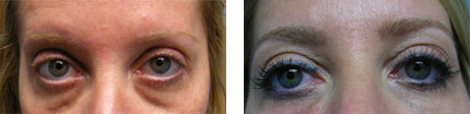 non-surgical-eyelift-before-after