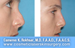 nonsurgicalnosejob_before_after_A