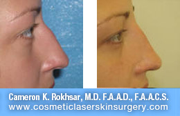 nonsurgicalnosejob_before_after_C