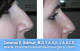nonsurgicalnosejob_before_after_D