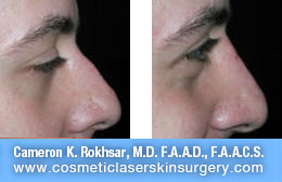 nonsurgicalnosejob_before_after_F