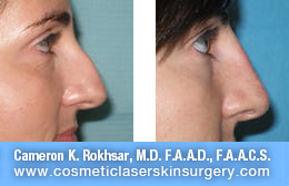 nonsurgicalnosejob_before_after_G