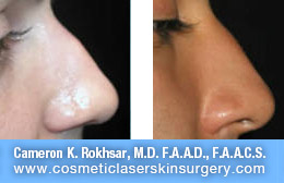 nonsurgicalnosejob_before_after_H