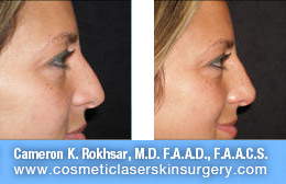 nonsurgicalnosejob_before_after_I
