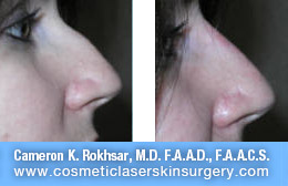 nonsurgicalnosejob_before_after_J