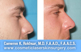 nonsurgicalnosejob_before_after_K
