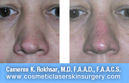 nonsurgicalnosejob_before_after_L