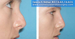 Non Surgical Nose Job Photo