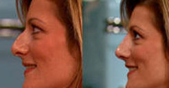 Non Surgical Nose Job Performed on The Rachel Ray Show