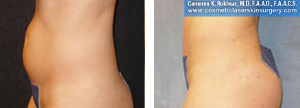 Liposuction NYC, Liposuction New York City