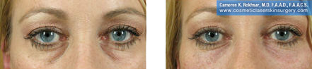 non-surgical-eye-lifts